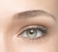Brow-Lifting